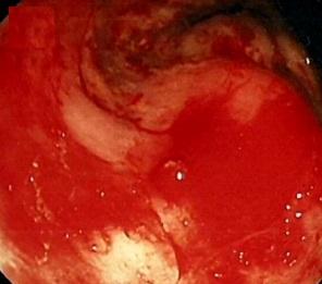 hemoroid kanaması nasıl durur