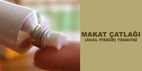 makat-catlagi-tedavisi