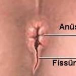 anal fissür nasıl görünür
