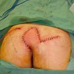 flap ameliyatı görselleri