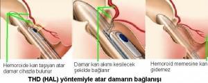 hemoroid thd yöntemi