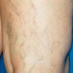 izmir kılcal damar tedavi merkezleri