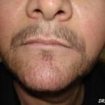 köseye sakal ekilirmi