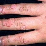 parmaklarda siğil