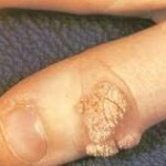 parmakta siğil tedavisi