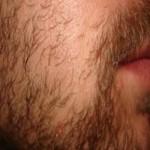 sakal ekimi sıklaştırma