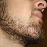 sakal ekimi sonrası