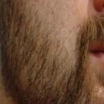 seyrek sakal nasıl sıklaşır