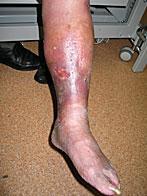varis ülseri tedavi resimleri