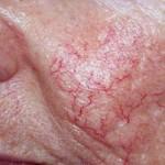 en iyi kılcal damar tedavisi