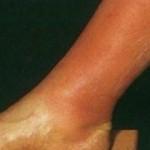 tromboflebit tedavisi nasıldır