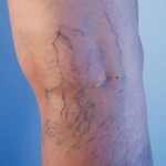 varis ameliyatı sonrası riskler