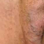 vulva varisi